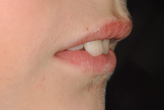 contrattura-interposizione-labbra