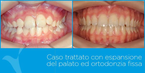 A_ortodonzia
