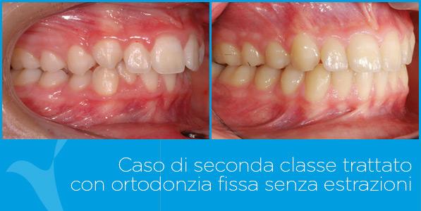 B_ortodonzia