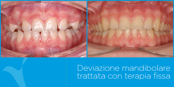 D_ortodonzia