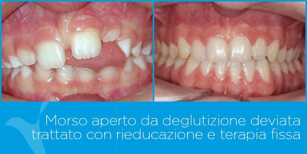 E_ortodonzia_ok