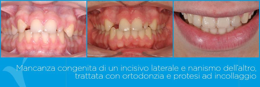 F_ortodonzia