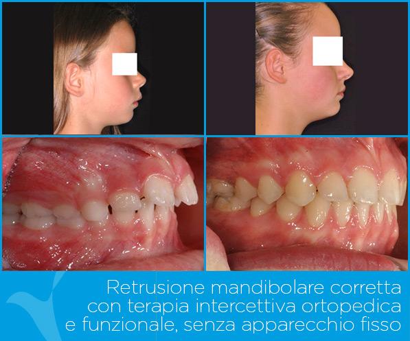 H_ortodonzia_ok