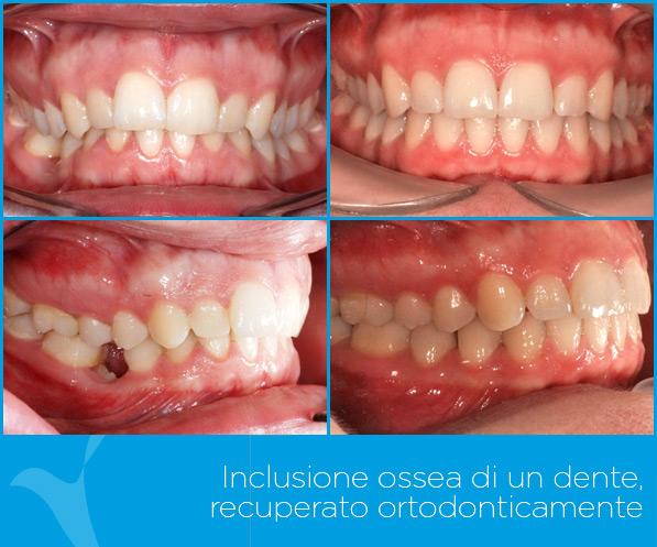 I_ortodonzia_ok