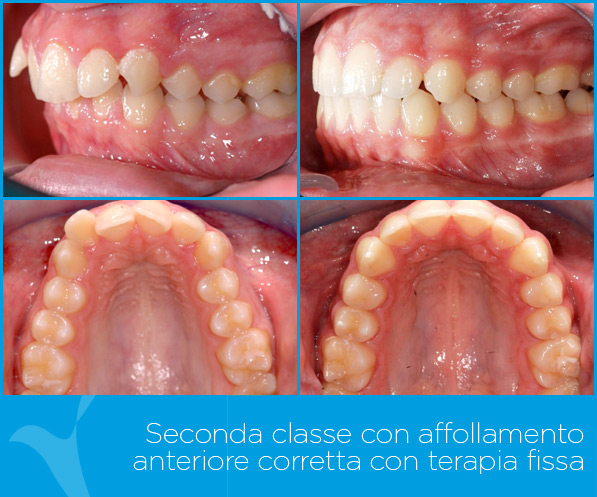 K_ortodonzia