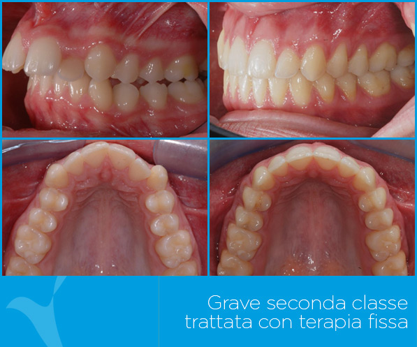 L_ortodonzia