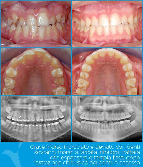 M_ortodonzia