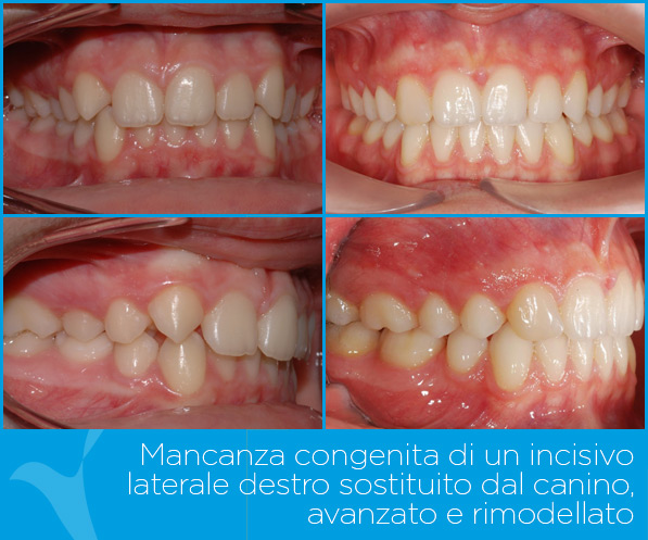 N_ortodonzia