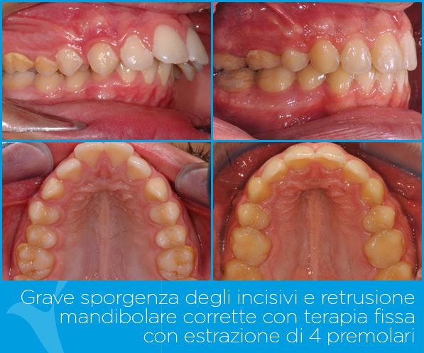 O_ortodonzia