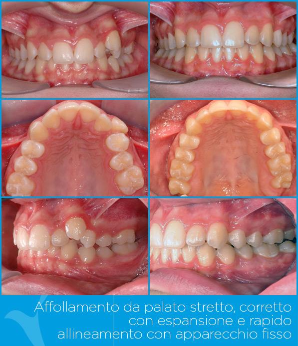 P_ortodonzia