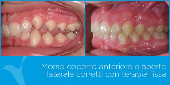 V_ortodonzia