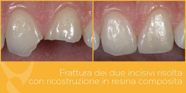 B_odontoiatria