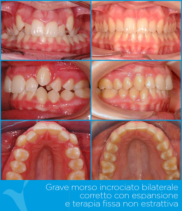 Q_ortodonzia