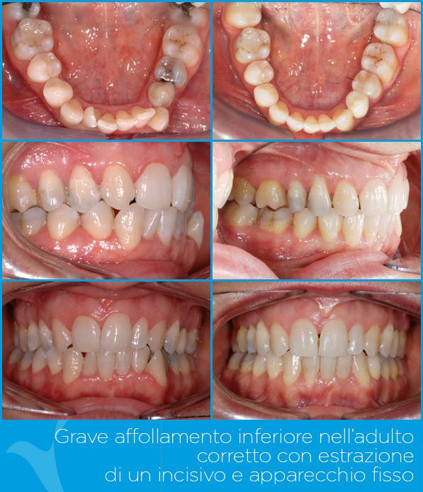 S_ortodonzia