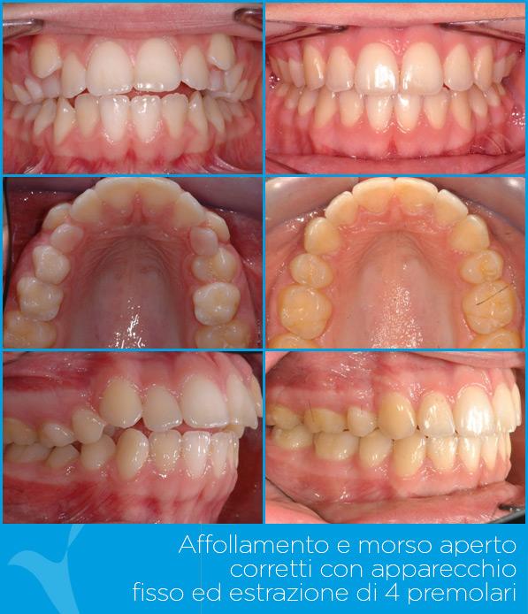 T_ortodonzia