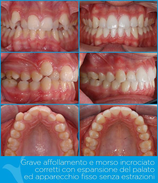 U_ortodonzia