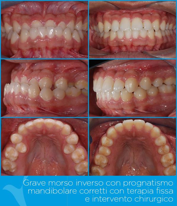 W_ortodonzia