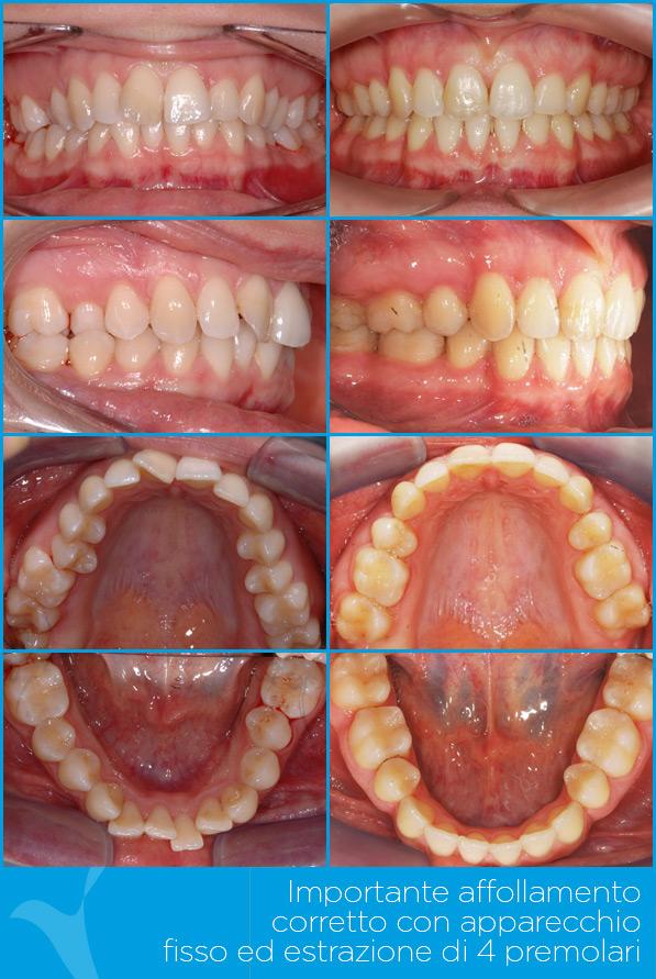 X_ortodonzia