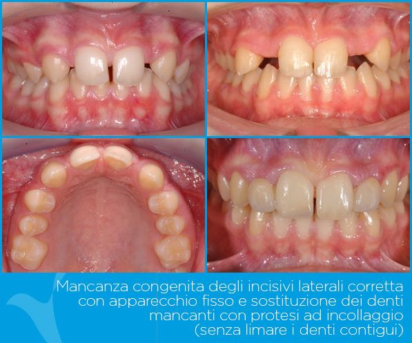 Z_ortodonzia