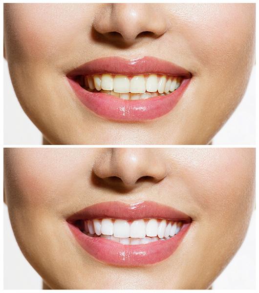 sbiancamento-denti-clinica-sorriso-del-bambino