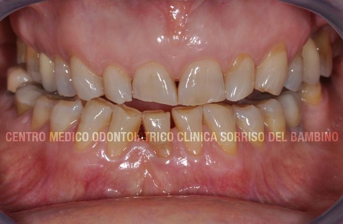 usura-dei-denti01-clinica-sorriso-del-bambino
