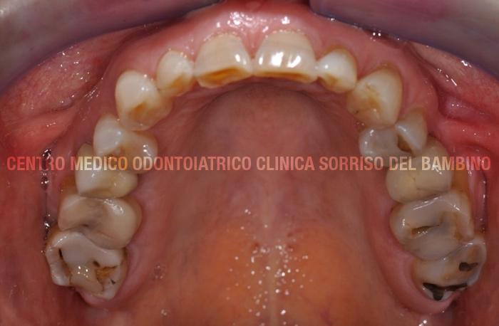 usura-dei-denti02-clinica-sorriso-del-bambino