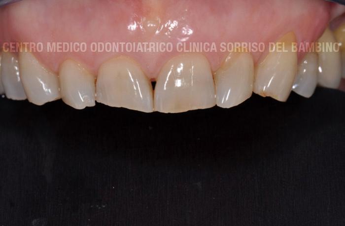 usura-dei-denti03-clinica-sorriso-del-bambino