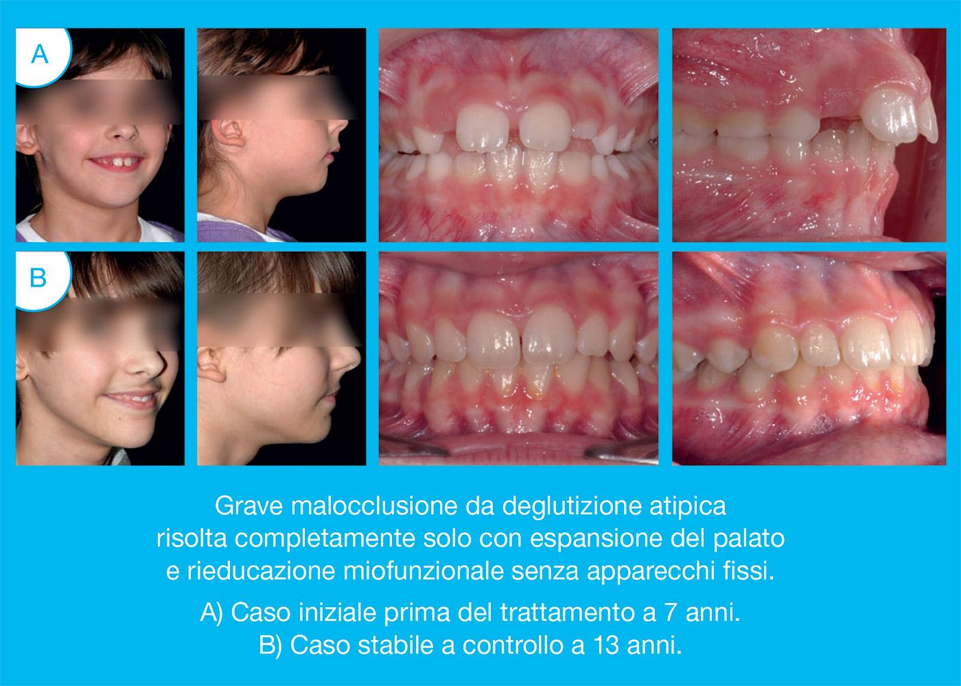 Le fasi della Terapia Ortodontica Miofunzionale-caso
